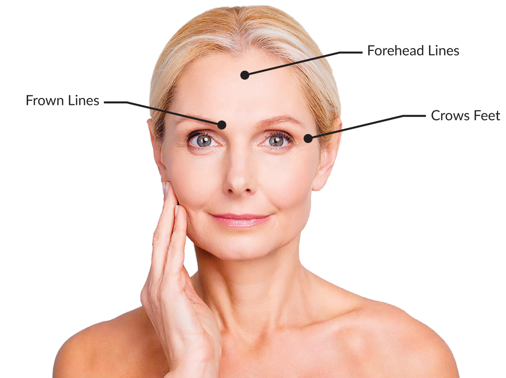 anti wrinkle injections banner hampshire